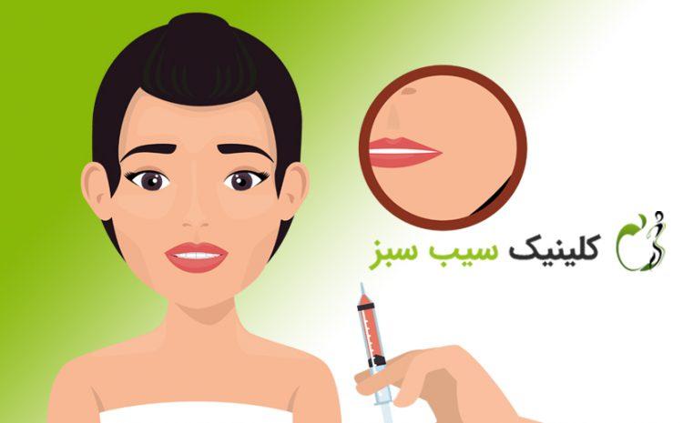 تفاوت تزریق ژل با تزریق چربی، کدام روش بهتر است ؟