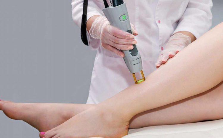 درمان واریس با لیزر کوترا