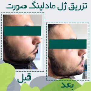 زاویه سازی صورت