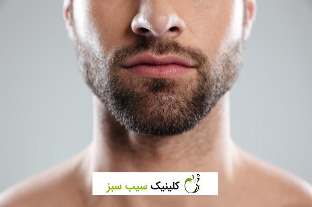 پر کردن ریش با متد میکروپیگمنتیشین