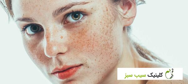 با درمان از بین بردن کک و مک به پوستی بی عیب و نقص سلام کنید