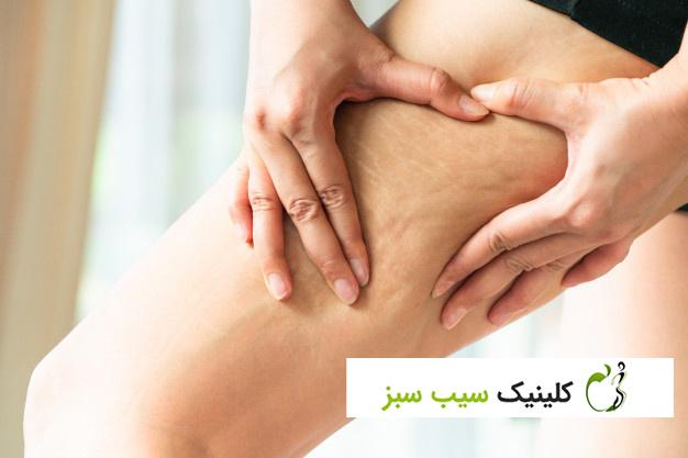 بهترین درمان سلولیت