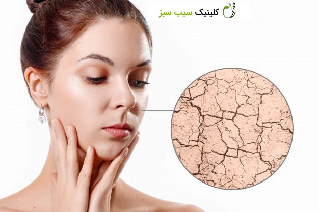 مراقبت و درمان خشکی پوست