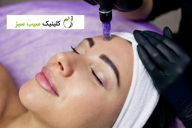 میکرونیدلینگ: درمان القایی کلاژن