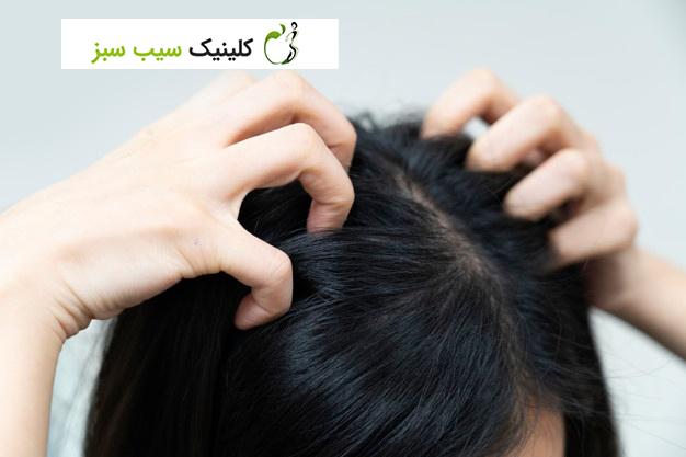 درمان شپش سر به چه صورت است؟